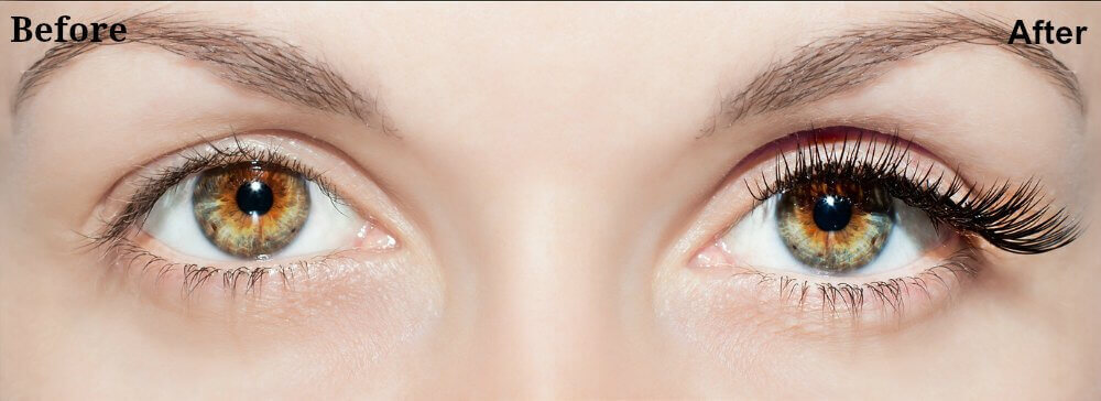 eyelash-extensions-before-after1